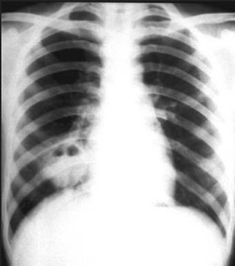 肺脓肿.jpg