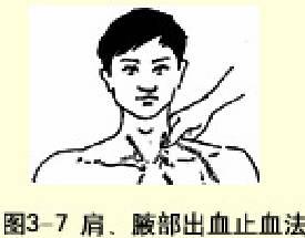 腋部出血止血法