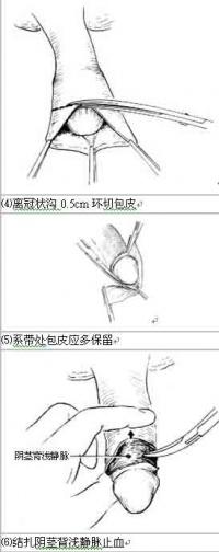 包皮环切术手术步骤示意图3